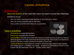 Cardiac Arrhythmia - An-Najah National University