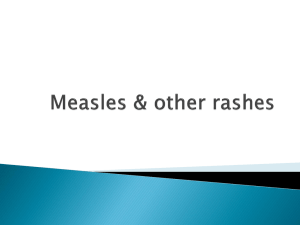 Measles & other rashes