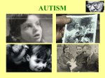 AUTISM The Secret Truth about Vaccines