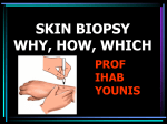 Every skin nodule should be biopsied 2
