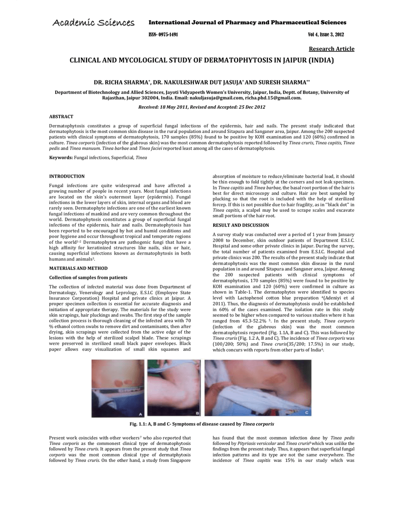 CLINICAL AND MYCOLOGICAL STUDY OF DERMATOPHYTOSIS IN JAIPUR