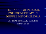 TECHNIQUE OF PLEURAL PNEUMONECTOMY IN DIFFUSE MESOTHELIOMA