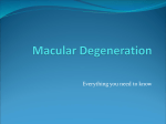 Macular Degeneration - Norman Salmoni Opticians