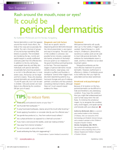 perioral dermatitis - Canadian Skin Patient Alliance