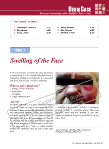Swelling of the Face - STA HealthCare Communications